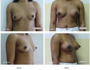 Ahida BARRY Prothèses mammaires 325cc Le 21.06.2019-1