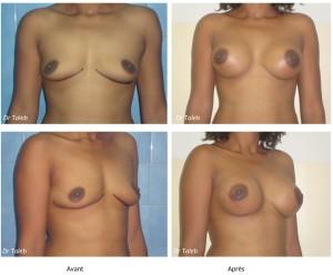 Alima O. Prothèses mammaires 350cc Le 19.05.2015-1