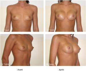 Cecilia L. Prothèses mammaires 240cc Le 22.07.2011-1