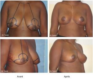 Corine K. Reduction mammaire Le 25.04.2014-1