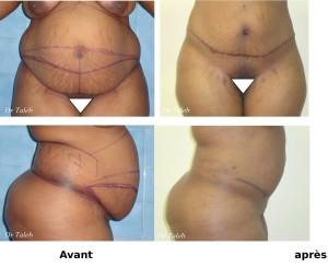 Massiata B. Plastie abdominale Le 06.01.2011-1