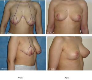 Moutiaa B. Lifting mammaire Le 24.11.2009-1
