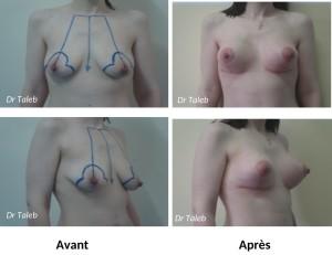 Sahar K. Prothèses lifting mammaires Le 06.04.2017-1